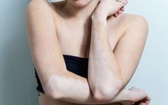 女性白癜风患者吃什么对皮肤病好呢