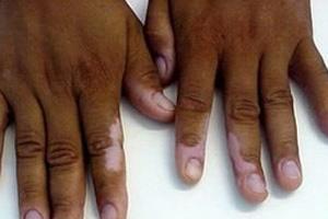 白癜风病情加重有哪些症状呢?
