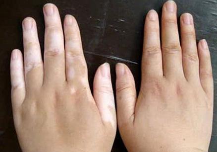 手指上长白癜风怎么办