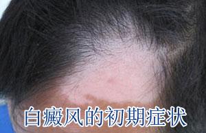 头部白癜风有什么症状?