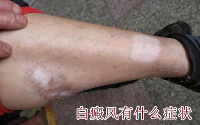 腿部白癜风有哪些早期症状