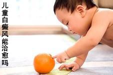 如何治疗儿童白癜风?