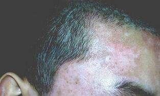 白癜风对男性患者的危害有哪些